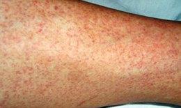 Sốt xuất huyết Dengue ở người lớn